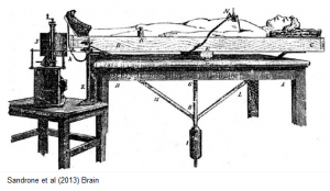 Balance Brain Picture